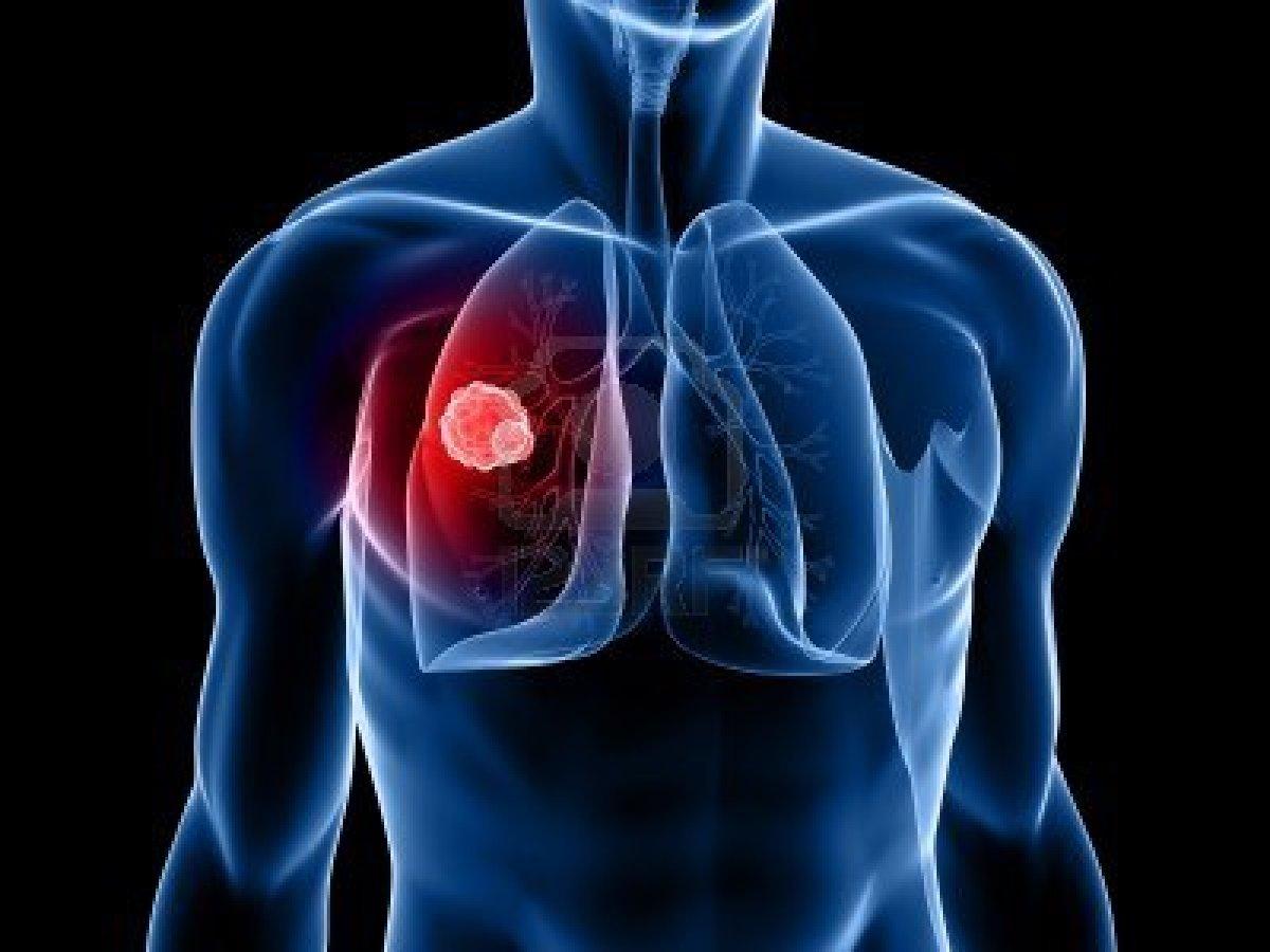 Extremamente Câncer de Pulmão – Dra Flávia Salame NY25